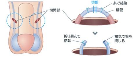 パイプカット手術画像