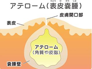 粉瘤イメージ